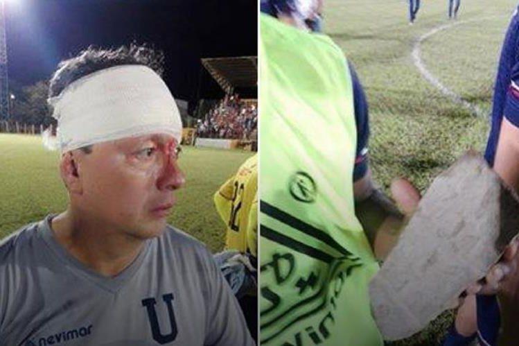 El médico David Canizalez fue agredido en la cabeza durante el partido contra Mictlán. (Foto Redes).