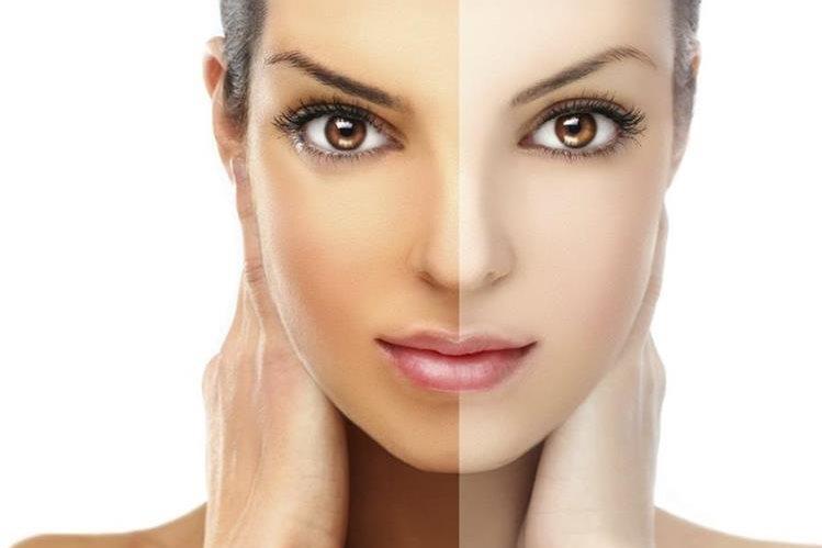 La pigmentación muy clara de piel está asociado con riesgos altos de tener este tipo de cáncer.