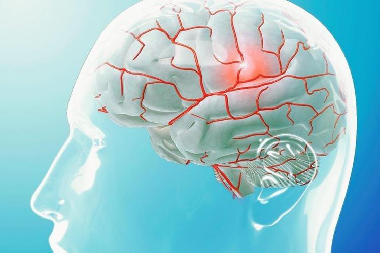 Científicos ensayan un dispositivo que bloquea la cefalea en racimo, la más dolorosa de las migrañas primarias. (Foto Prensa Libre: EFE)